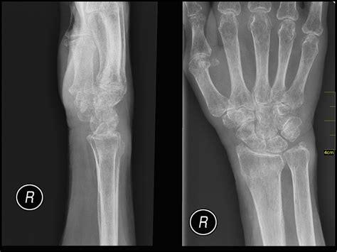 protective goo  bones prevents shattering  pressure