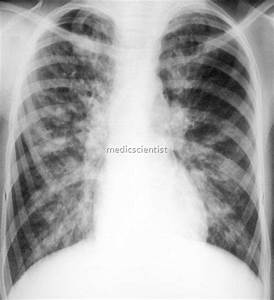 Bronchiectasis Signs and Symptoms Diagnosis Treatment ...