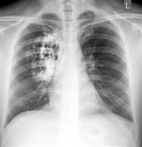 Pneumonia Lung Pictures Pneumonia
