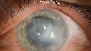 Ongoing Outbreak Of Rare Eye Infection Found Among Contact