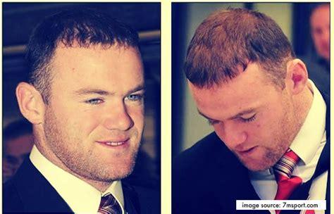 Hair Implants Yonkers Ny 10702 Wayne Rooney After Result Hair Transplant
