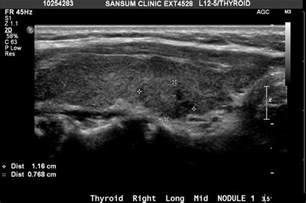 Thyroid Nodule Ultrasound