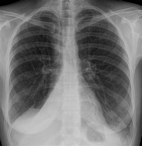 breath image journal