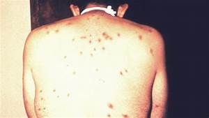 HIV Rash: What Does It Look Like and How Is It Treated?