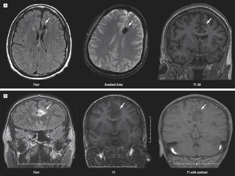 cingulate gyrus epilepsyclinical  behavioral aspects