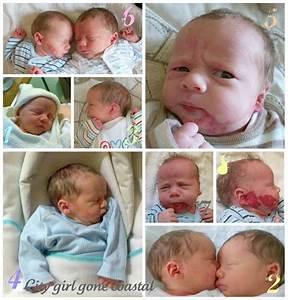The Evolution Of A Birthmark