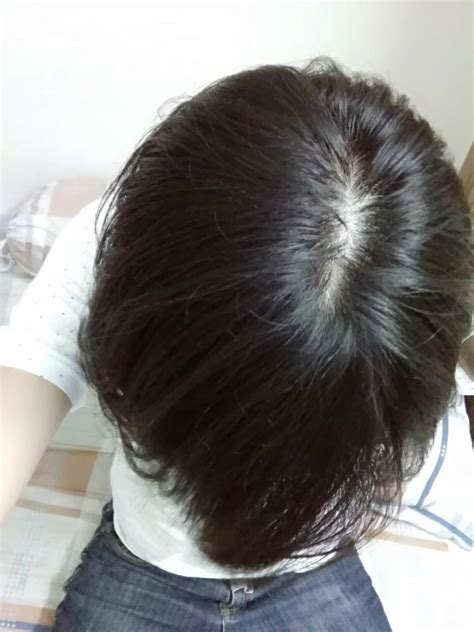 hair thinning  crown  hairstyles