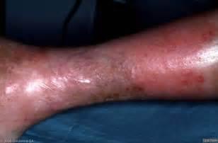 Cellulitis Leg