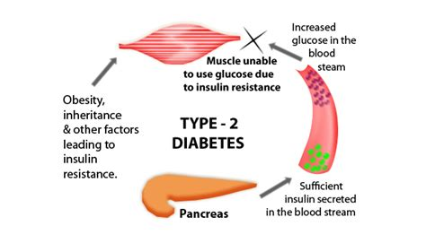 Short Term Effects Of Type 2 Diabetes  My Health Tips. St Augustine Florida University. Motorcycle Insurance California. Dreyfus Intermediate Municipal Bond Fund. Most Affordable Health Insurance Companies. Hotels Near Moscone Center Accidente De Auto. Business Cards Baton Rouge Global Hr Services. Police Involved Shootings Ms Project For Ipad. Arts And Technology Academy How To Setup Ftp