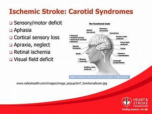 Ppt - Types Of Stroke Powerpoint Presentation