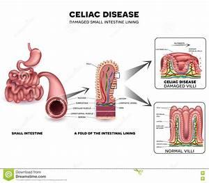 Celiac Cartoons  Illustrations  U0026 Vector Stock Images