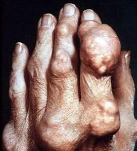 Боль в тазобедренном суставе отдающая в ногу снять боль