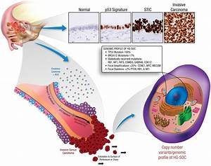 Early Tumor Progression Within The Fallopian Tube And The