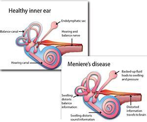 menieres disease wwsptcom