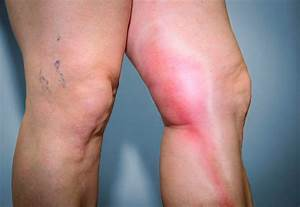 Thrombophlebitis - Indiana Vein Specialists  Superficial