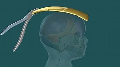 Head Skull Filled Fluid Surgery Shape Surgeons