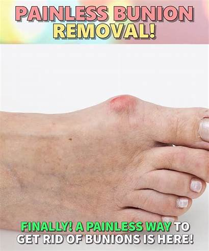 Bunion Health Skin Foot Care Wellness Corrector