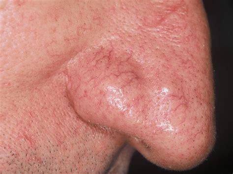 bouton dacne dans le nez medical sante