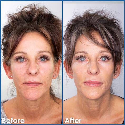 dermal fillers edmonton sharma skin hair surgery clinic