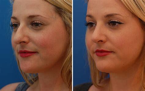 nose job    nyc nasal surgery results