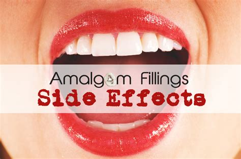 Dangers Of Amalgam Fillings