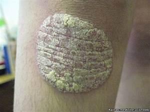 Псориаз ногтя на руке лечение
