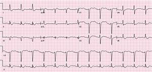 R.E.B.E.L. ECG of the Week #4 - R.E.B.E.L. EM - Emergency ...