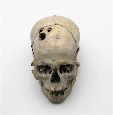 trepanned bronze age skull   bc  science