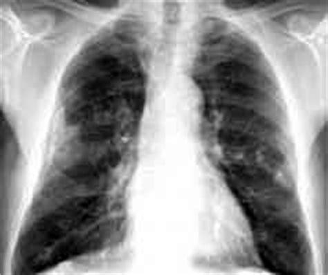 asbestos pleural plaque suffers win partial victory pp