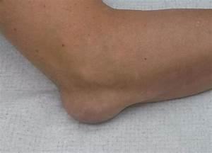 При ходьбе сильная боль в тазобедренном суставе