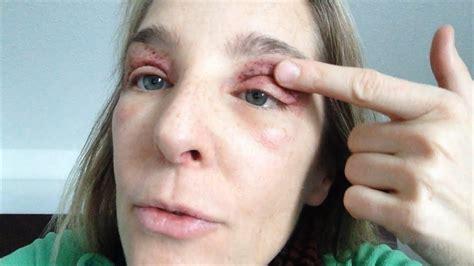 Augenlidstraffung ohne OP  Tag 2 nach der Lidkorrektur