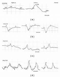 A  Pattern Electroretinogram  Perg  Showing Reduction Of