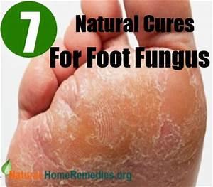 Лечение грибка ногтей на ногах перекисью водорода отзывы
