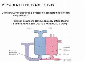 Patent Ductus Arteriosus Pathophysiology