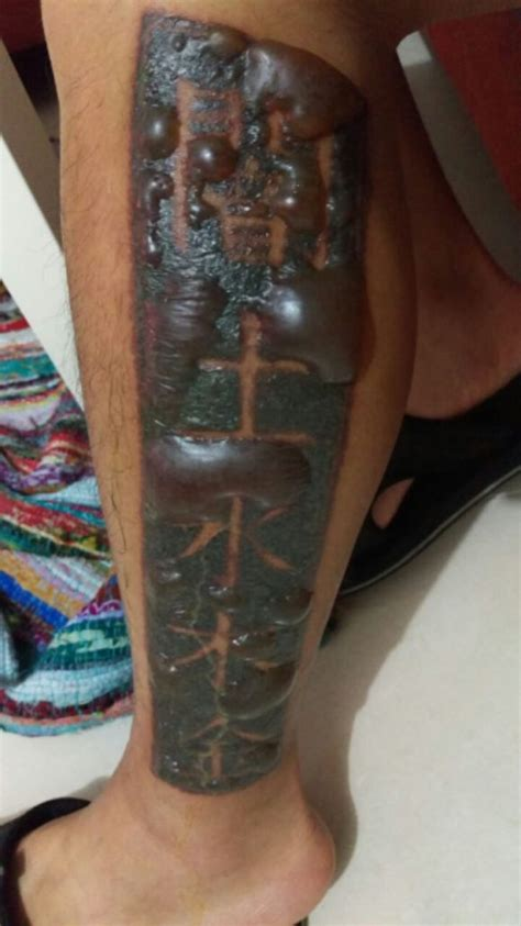 tattoo removal  wrong   avoid  tattoo removal