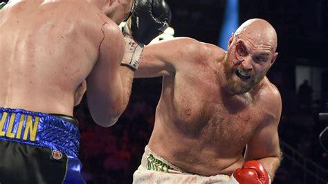 Heavyweight boxing champion Tyson Fury explains shocking ...