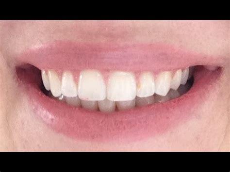 Fliesen Entfernen Wie Lange Dauert Das by Zahnspange Raus Vorher Nachher Zahnspange F 252 R Erwachsene