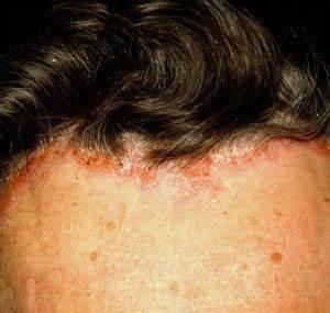 Псориаз на голове заразный