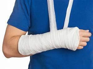 How To Treat A Colles Fracture