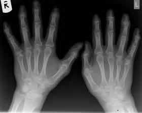 Psoriatic Arthritis Hand X-ray