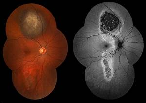 Ophthalmic Photography