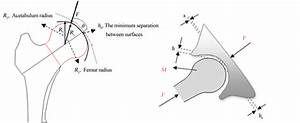A Contact Model For Establishment Of Hip Joint Implant