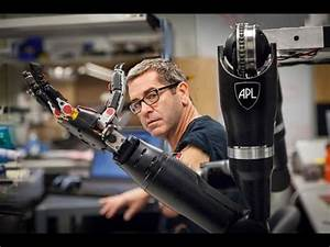 Will a robotic arm ever have the full functionality of a ...