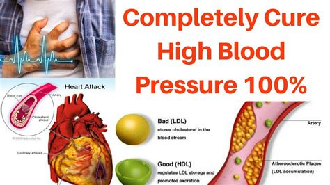 high blood pressure cure  permanently cure high