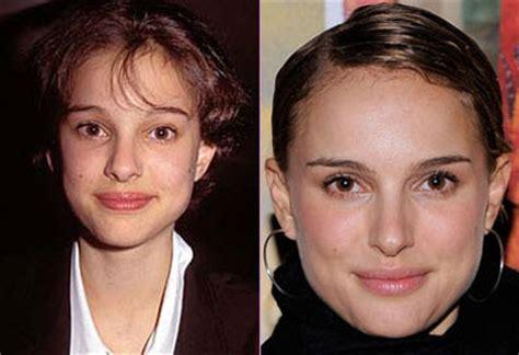 Natalie Portman Plastic Surgery Nose Jobs Before After