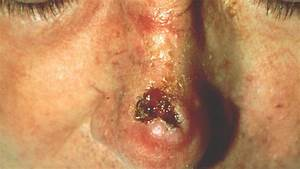 Pictures Of Squamous Cell Carcinoma
