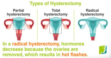Hot Flashes after a Hysterectomy   Menopause Now