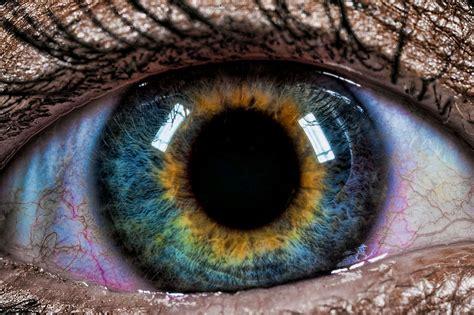 beautiful mutations  staggering   heterochromia