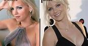 Anna Faris Plastic Surgery   Plastic Surgery