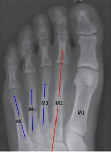 2nd Metatarsal Stress Fracture